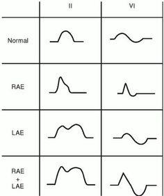 P wave morphologies