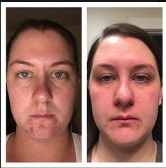 Microdermabrasion has made the track record of significantly benefiting the skin and offering a more youthful appearance. Have you considered this treatment? Rodan And Fields Soothe, Crows Feet, Sensitive Skin, Skin Care, Game Changer, Track, Rest, Times, Beauty
