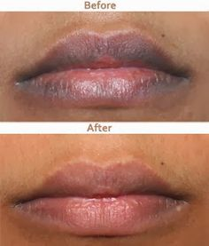 Beauty:Natural Ways To Lighten Dark Lips. I wonder if this would work for the dark area around the lips as well.