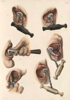 Tooth extraction of a molar and an incisor with 3 types of forceps by Nicolas Henri Jacob from 'Traité complet de l'anatomie de l'homme' by Marc Jean Bourgery, 1831. (pinterest.com/pin/287386019941966857/).