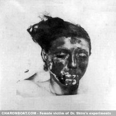 The first female prisoner of Unit 731 is a victim of the phosphorus burn wound experiments conducted by microbiologist Shiro Ishii.