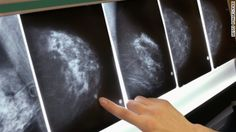 American Cancer Society says women should start getting mammograms at 45 instead of 40, and everyone can skip the routine doctor breast checks.