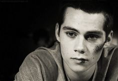 ANIMATED GIF. Dylan O'Brien, (Teen Wolf 2x12)