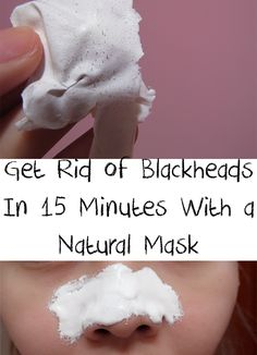 You don't need anymore those special bands for extracting blackheads because you can clean your skin with a simple homemade mask! Read more: