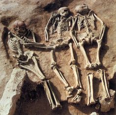 The triple burial of Doln�%u0192 V�%u201E�%u20AC�stonice (Moravia), dated to about 27,000 years ago, includes three young individuals lying in unusual positions--one face down, the other on its side with hands reaching the pubic region of the skeleton in the middle. The skeleton in the middle is affected by a congenital dysplasia. Young age and position of the specimens, their simultaneous interment and the pathological condition of the skeleton in the middle make this burial very…