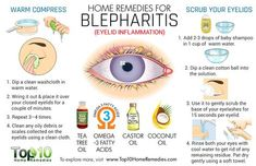 home remedies for blepharitis. Blepharitis is a chronic and incurable condition