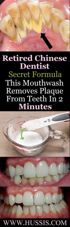 Retired Chinese Dentist Secret Formula This Mouthwash Removes Plaque From Teeth In 2 Minutes - Salud Bucal Teeth Health, Dental Health, Oral Health, Health And Wellness, Health Fitness, Healthy Teeth, Gum Health, Healthy Carbs, Kidney Health