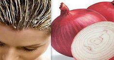 Hair mask with onion is above all a powerful nutrition for the scalp with minerals and vitamins that are in high amount in this unique product. The mask with onion hydrates, stops hair loss, improves the structure and accelerates the growth of hair. Onion For Hair, Onion Juice, Hair Issues, Hair Loss Remedies, Prevent Hair Loss, Tips Belleza, Shiny Hair, Glossy Hair, Hair Health