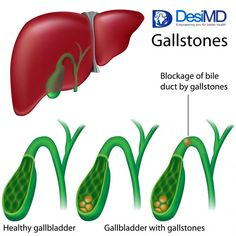 Cancer of the Gall Bladder