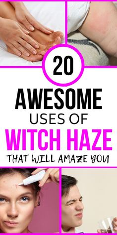 Anti Aging, Witch Hazel Uses, Health Tips, Health And Wellness, Avon, Natural Health Remedies, Useful Life Hacks, Good To Know, Body Care