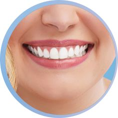 Crest Whitening Emulsions: Leave On Teeth Whitening Treatment Crest Whitening, Teeth Whitening, White Smile, White Teeth, Beautiful Smile, Dental Care, Wands, Take That, Cross Stitch