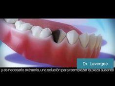 Sabes que es un Implante Dental??