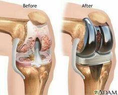 Tips for Anti Diet - Cette femme s'est débarrassée des douleurs articulaires en un jour et sans aller chez le médecin, Découvrez son remède secret. Knee Replacement Alternatives, Partial Knee Replacement, Knee Replacement Surgery, Joint Replacement, Aching Knees, Knee Surgery, Knee Injury, Knee Pain, Arthritis