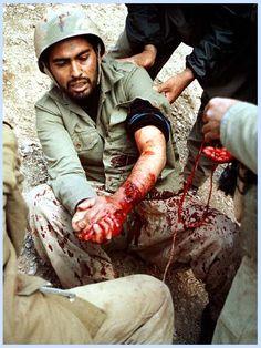 Wounded Iranian soldier.  Iran–Iraq War