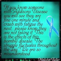 Addisons Disease                                                                                                                                                                                 More