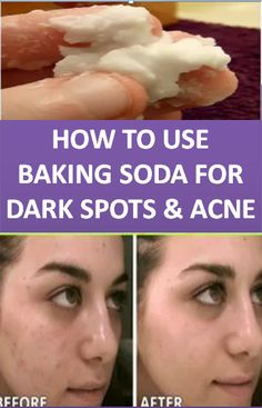 Baking Soda Shampoo: It can Make Your Hair Develop Like It isBaking Soda Shampoo: It is going to Make Your Hair Grow Like It is Magic! Baking Soda And Honey, Baking Soda Baking Powder, Baking Soda For Hair, Baking Soda Water, Baking Soda Shampoo, Baking Soda Uses, Clarifying Shampoo, Dry Shampoo, Honey Shampoo