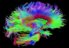 White Matter Fibers of the Brain, Mapped with Diffusion Tensor Imaging