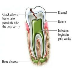 When you crack your tooth you need to show it to a dentist. A crack can allow bacteria to penetrate through the protective enamel and dentin directly into the pulp cavity where an infection can begin and abscess. This can lead to the tooth needing a root canal (endodontic therapy) or removed (extracted).