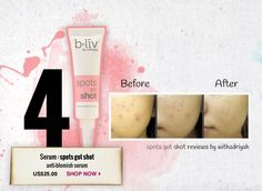 Spots Got Shot - Anti-blemish serum  #blivinbeauty and #pinmetowinme