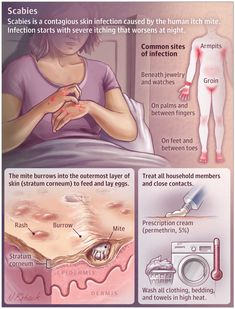 Nurses Discover This JAMA Patient Page describes the symptoms diagnosis and treatment of scabies skin infestation. Dermatology Nurse, Nursing School Notes, Pediatric Nursing, Wound Care, Nursing Tips, Medical Illustration, Medical Information, Anatomy And Physiology, Nursing Students
