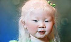 Curiosidades sobre el albinismo