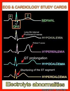 EKG changes with electrolyte abnormalities.
