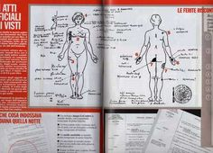 diana_autopsy_her injuries***