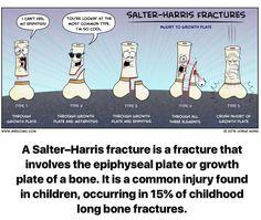 Salter Harris Fractures