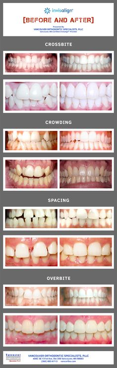 Take a look at this collection of Invisalign® before and after photos.