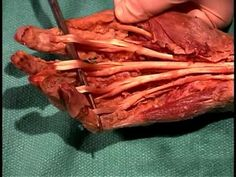 Human Anatomy Dissection 23 (part 2 of 2) Forearm and Hand - YouTube