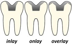 At Cosmetic Dentistry NYC, we provide porcelain Inlays/Onlays customized to match your natural tooth shade.
