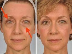 Troubled by sagging eyelids here is a solution that takes just 2 minutes of your time