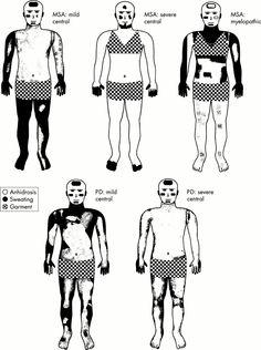 Distinguish Parkinsons vs MSA in Thermoregulatory Sweat Test