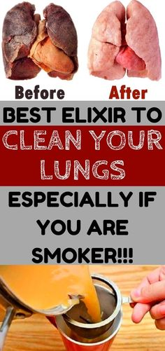 ATTENTION TO SMOKERS: You Can Remove Toxins From the Body In 3 days!!!!! Health Care, Health And Wellness, Health Tips, Lung Detox, Lung Cleanse, Fitness Diet, Health Fitness, Smokers, Lungs