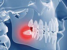 Stále vám tvrdí zubař nebo kamarádi, ať si odstraníte zuby moudrosti? Pak byste měli vědět, že v určitém věku už je to velice nebezpečné!