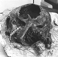 In Scandinavië people dug for pite for centuries, it is still done in some places be it on a very small scale. During this pitedigging several bodies were discovered, especially in Denmark. Gaping Hole, Ancient History, Archaeology, One Pic, Denmark, Skull, Skeletons, Dna, Bodies