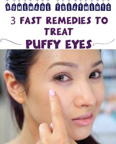 3 Fast Remedies to Treat Puffy Eyes
