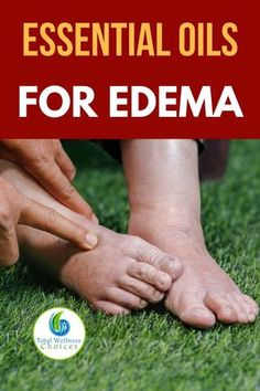 Looking for swollen feet remedies? You will find these essential oils for edema helpful for treating swelling in your feet and ankles naturally. #swollenfeetremedies #swollenfeetesssentialoils #edemaremedies #essentialoilsforswollenfeet #swollenankles #naturalremediesforswollenfeet