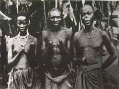 Congolese people with their hands hacked off