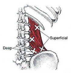 Quadratus Lumborum | The Trigger Point & Referred Pain Guide
