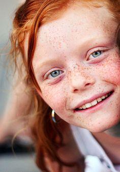 freckles | Flickr - Photo Sharing❤️