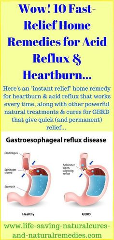 Best Natural Remedies & Home Treatments for Acid Reflux (GERD) & Heartburn Relie. Best Natural Remedies & Home Treatment. Heartburn Symptoms, Natural Remedies For Heartburn, Reflux Symptoms, Reflux Disease, Natural Cures, Natural Treatments, Natural Health, Constant Heartburn, Natural Remedies