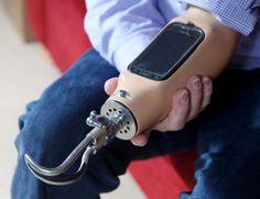 smartphone prosthetic