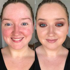 Beauty expert Rose Gallagher, has spent years honing her skincare and make-up routine to keep her rosacea soothed and concealed. Acne Treatment, Cream Blush Stick, Beauty Hacks, Beauty Ideas, Beauty Tips, Beauty Products, Anti Redness, Beauty Makeup, Furniture