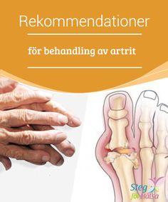 Rekommendationer för behandling av artrit  Artrit är en #kronisk sjukdom och dess enda #lösning är i vissa fall kirurgi. Därför vill vi ge dig en rad tips och #rekommendationer för att du så långt det är möjligt ska #slippa ta till kirurgi.