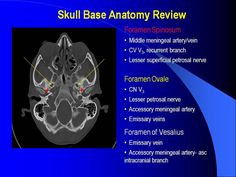 Skull Base: Review and Pathology | VEOMED