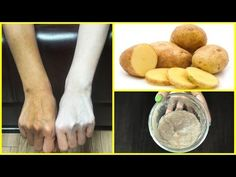 15 Minutes Skin Whitening Potato Facial Bleach | Get Fair, Spotless, Glowing Skin 100% Works - YouTube