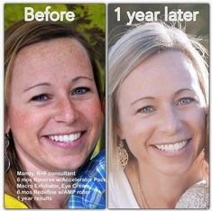 THIS is one of the many reasons I wanted to be a part of Rodan and Fields. This is a before & after of one of my teammates, Mandy's, results. Freckles are sun damage & as we age, they become more splotchy. Mandy also wanted to treat fine lines & wrinkles. She was able to accomplish both! What is YOUR biggest skin concern? Message me or call/text 636-248-4463. The best part is: if you don't absolutely LOVE your results, simply send it back within 60 days for a FULL refund!  @soldinstl