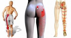 Image source for sciatica - Gymnastik - Nagel Yoga Fitness, Health Fitness, Age Appropriate Chores For Kids, Sciatica, Most Beautiful Pictures, Hold On, Told You So, Parenting, Pleated Skirt