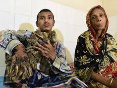 Notimundo: El Hombre-Árbol de Bangladesh sometido a operación...